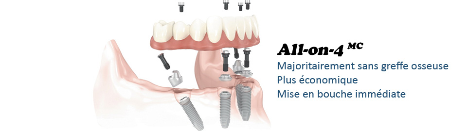 Solution All-on-4 pour implants dentaires